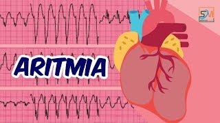 GANGGUAN IRAMA JANTUNG (ARITMIA) Halo Sahabat Ruang Dokter semua, semoga sehat selalu. Aritmia atau .