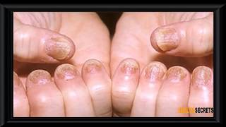 How To Treat Psoriasis Naturally - 5 Natural Treatments for Inverse Psoriasis