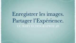 UC Baby Echographie 3D Images | Témoignages de nos clients