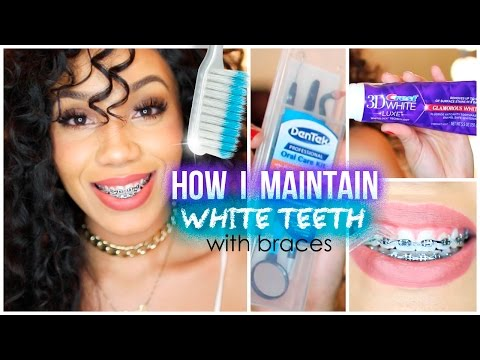 download video how i maintain white teeth with braces. Black Bedroom Furniture Sets. Home Design Ideas