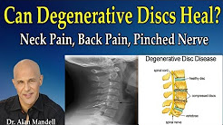hqdefault - Scoliosis Back Pain Degenerative