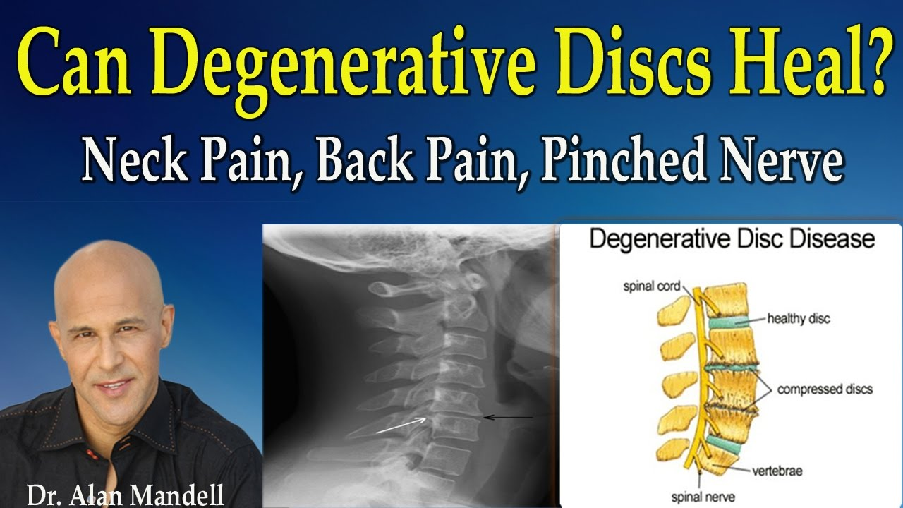 can degenerative discs heal normal again neck pain back pain