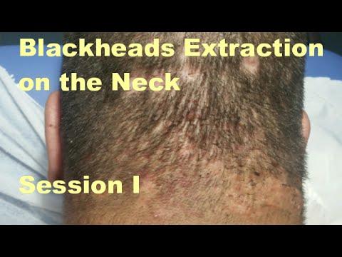 Blackheads Extraction on