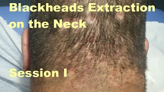 Blackheads Extraction on the Neck - Session 1. Deep Box-car Scars