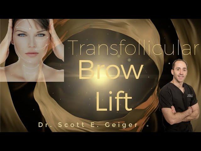 Brow Lift - Transfollicular, subcutaneous
