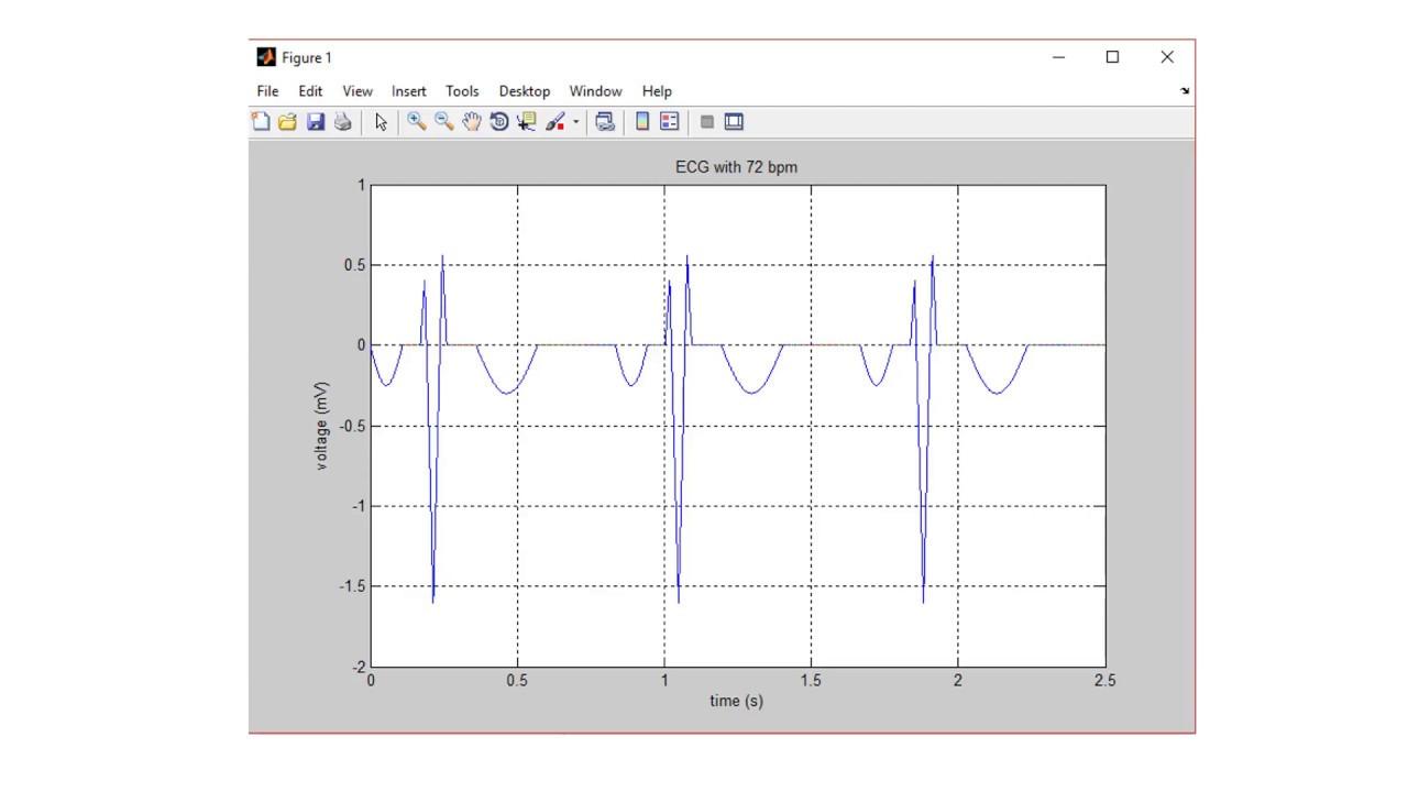 ECG MATLAB code Simulation m file