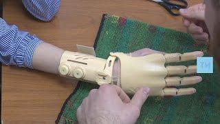 Потерявшей руку студентке из Челнов установили уникальный протез