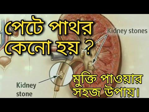 pete-pathor-keno-hoy?-pete-pathor-theke-mukti-power-upay,-kidney-stone.