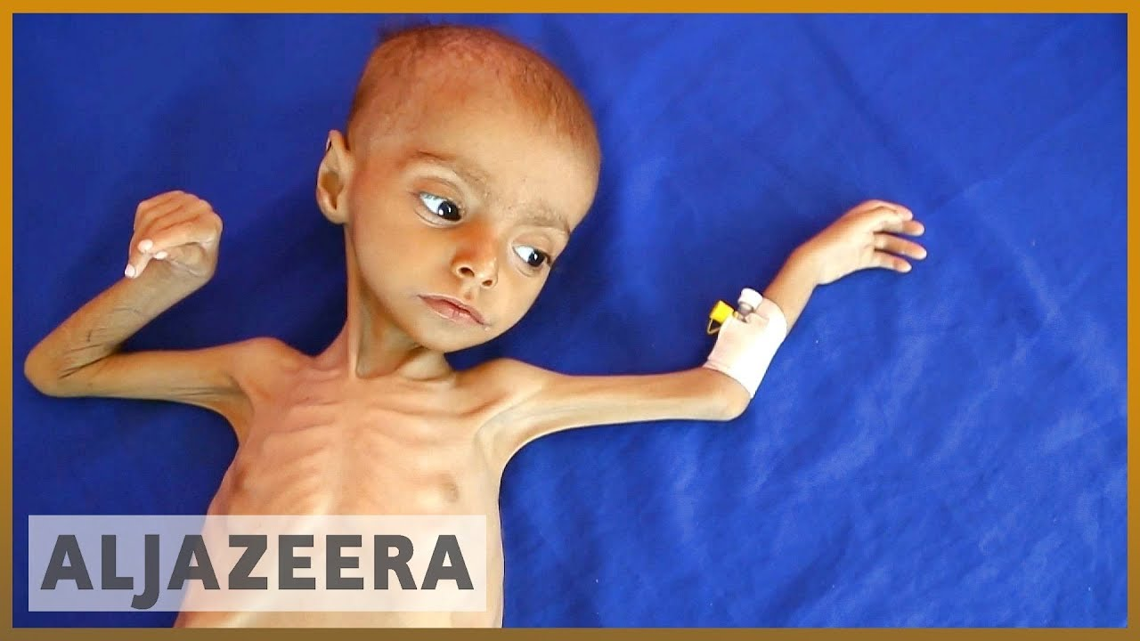 Just a reminder >> 🇾🇪 19 million Yemeni children suffer malnutrition and illness l Al Jazeera English