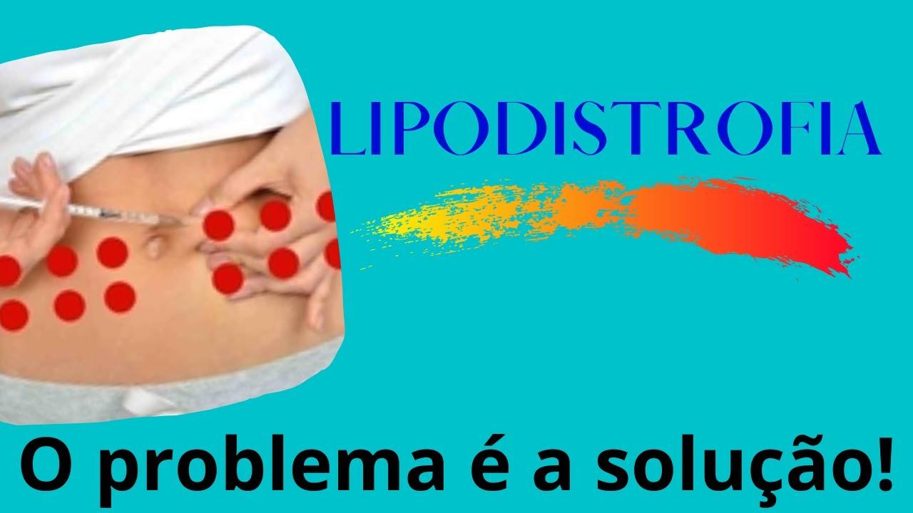 lipodistrofia diabetes fotos de diabetes