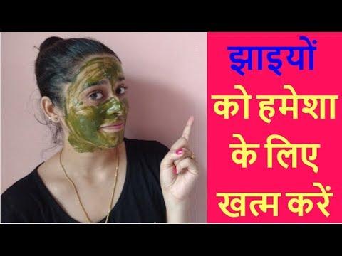 चेहरे की झाइयों को हमेशा के लिए खत्म करें | Remove Freckles, Pigmentation | Just another girl