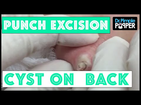 a recurrent cyst removed via punch biopsy tool | social medical network