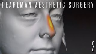 Rhinoplasty Pre-Op 3D Imaging with Dr. Steven Pearlman | Part 2