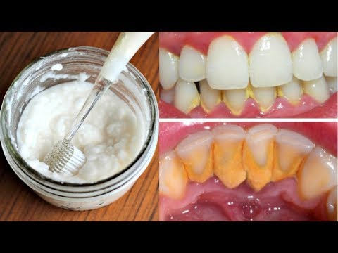 how to remove tartar from teeth with baking soda- how to remove dental plaque at home