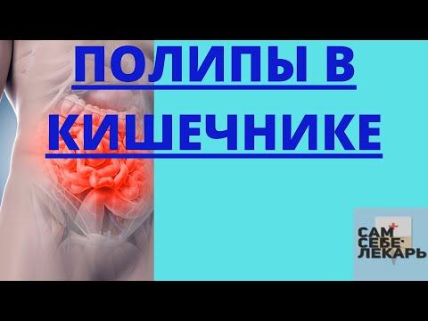 Полипы в кишечнике - что делать, если обнаружили полип