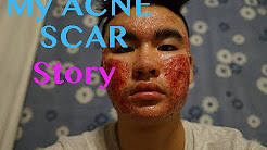 hqdefault - I Have The Worst Acne Scars