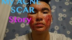 hqdefault - Who Has The Worst Acne In One Direction