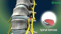 hqdefault - Neurosurgery Procedures For Back Pain