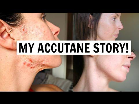 Accutane Journey (Pics Before & After) from YouTube · Duration:  3 minutes 57 seconds
