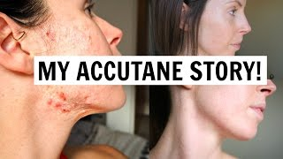 ACCUTANE BEFORE & AFTER | MY SKIN STORY & LIFE UPDATE