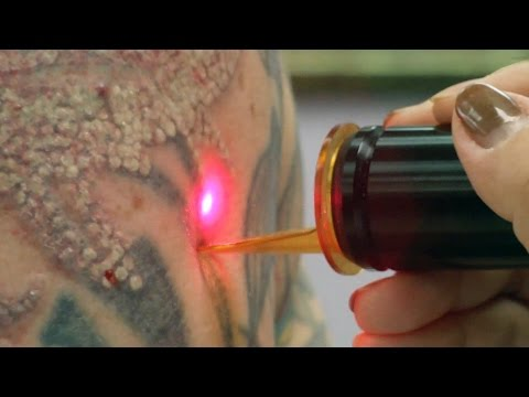 laser-tattoo-removal---how-a-tattoo-is-removed