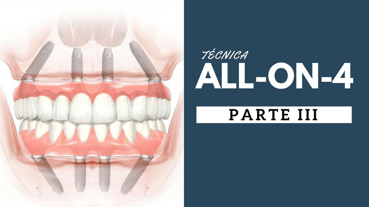 problemas dos implantes dentarios