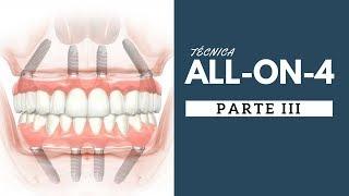 6. TÉCNICA ALL ON 4  - PARTE 3 - O mito de quanto mais implantes melhor