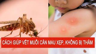Mẹo Nhỏ Cho Bạn - Chà Nước Đá Lên Vết Muỗi Cắn Giúp Mau Xẹp, Không Để Lại Vết Thâm