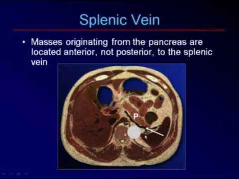 Sonography of the Pancreas and Spleen