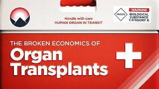 The Broken Economics of Organ Transplants