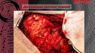 опухоль задней черепной ямки, опухоль шейного отдела(краниовертебральный переход, опухоль задней черепной ямки, опухоль шейного отдела, опухоль шейного отдела..., 2017-02-18T17:03:41.000Z)