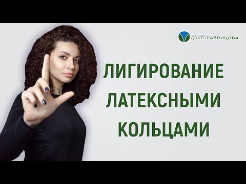 Лигирование латексными кольцами.  Прямой эфир с Марьяной Абрицовой