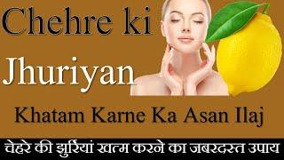 चेहरे की झुर्रियों को हटाने के घरेलु उपाय,Chehre Ki Jhuriyan Khatam Karne Ka Gharelu Ilaj,NO Wrinkle
