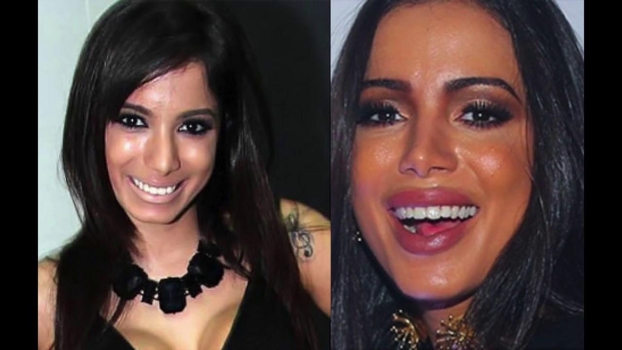 Antes e depois da anitta cirurgia plstica youtube thecheapjerseys Image collections