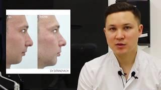 Увеличение подбородка / Пластика филлером / Dr Rinat Sitanovich