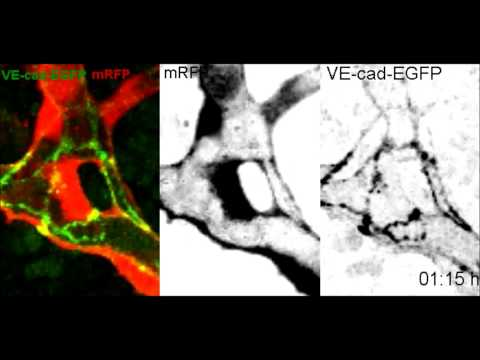 Endothelial Cell Self-fusion during Vascular Pruning