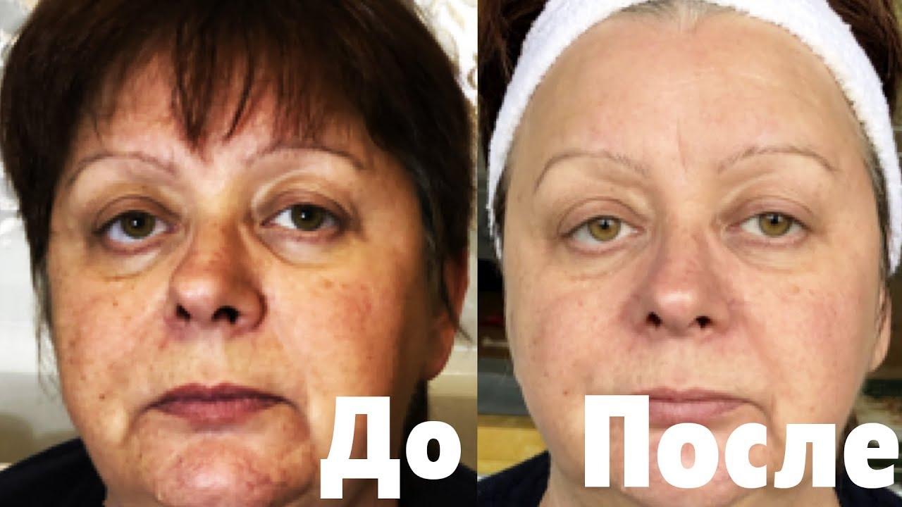 Я в шоке! Минус несколько лет за 8 процедур. Омолаживающая маска для женщин после 50 лет и скраб