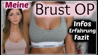 Körbchen brust op c Brustvergrößerung A