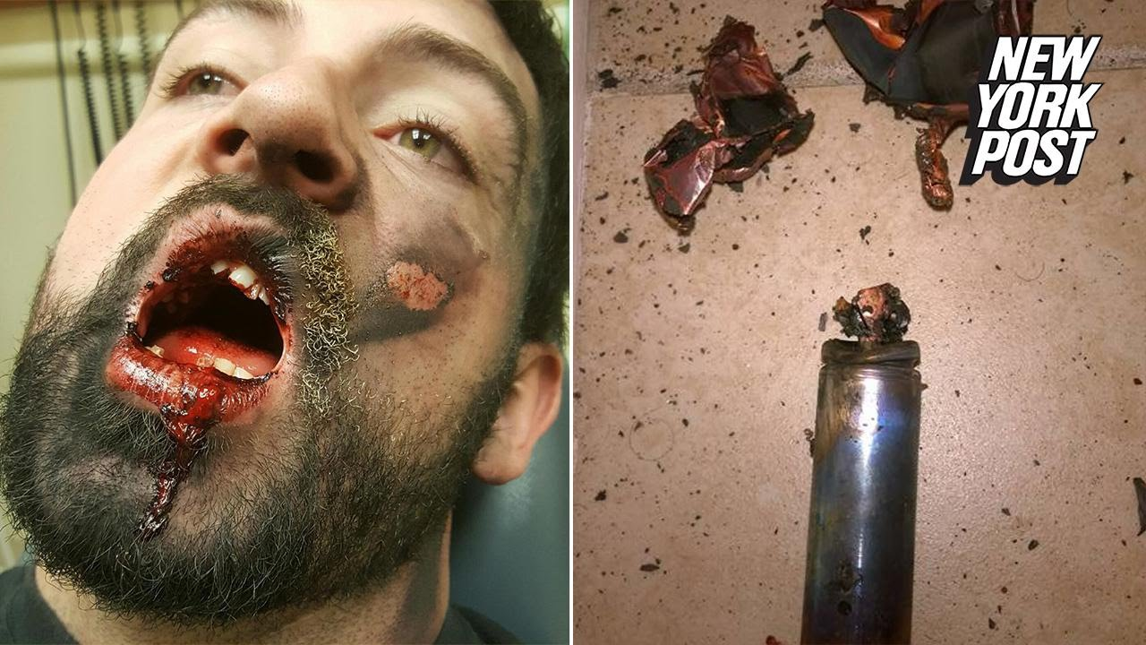 Exploding e-cig knocks 7 teeth out of man's mouth - YouTube