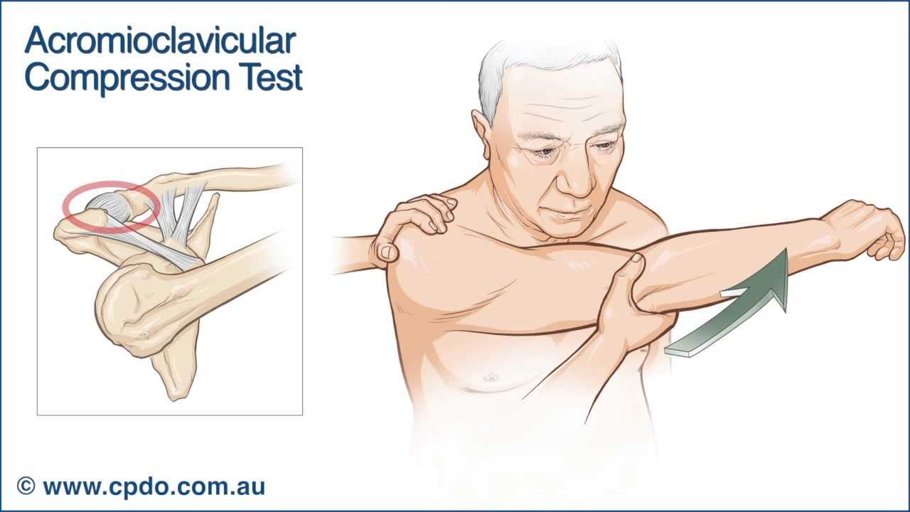 Acromioclavicular Compression Test Youtube
