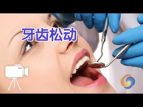 牙医教你牙齿松动该怎么办?|牙齿保健Fit Loose Teeth and Gums