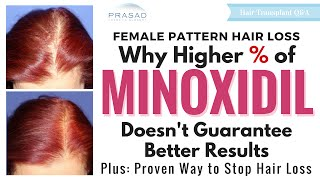 Hair Loss in Women - Why Stronger Minoxidil Doesn