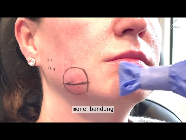 Dallas Kybella Procedure for Jowls by Dr. Lam
