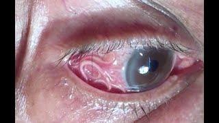 Biawak masuk Mcd hingga cacing parasit panjang keluar dari mata pria Kompilasi TomoNews Minggu Ini