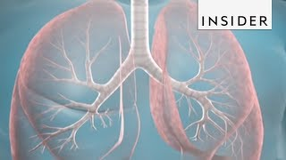 This Procedure Could Help Treat Severe Asthma