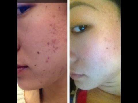 Can Acne Scars Be Removed? - KidsHealth