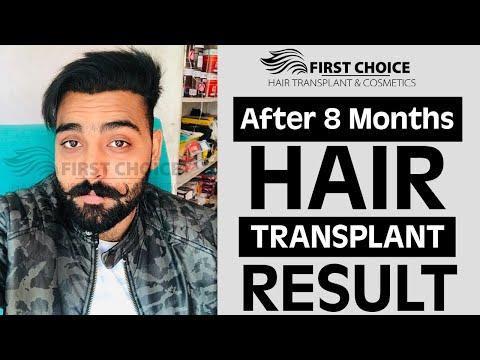 Baixar First Choice Hair Transplant Cosmetics - Download