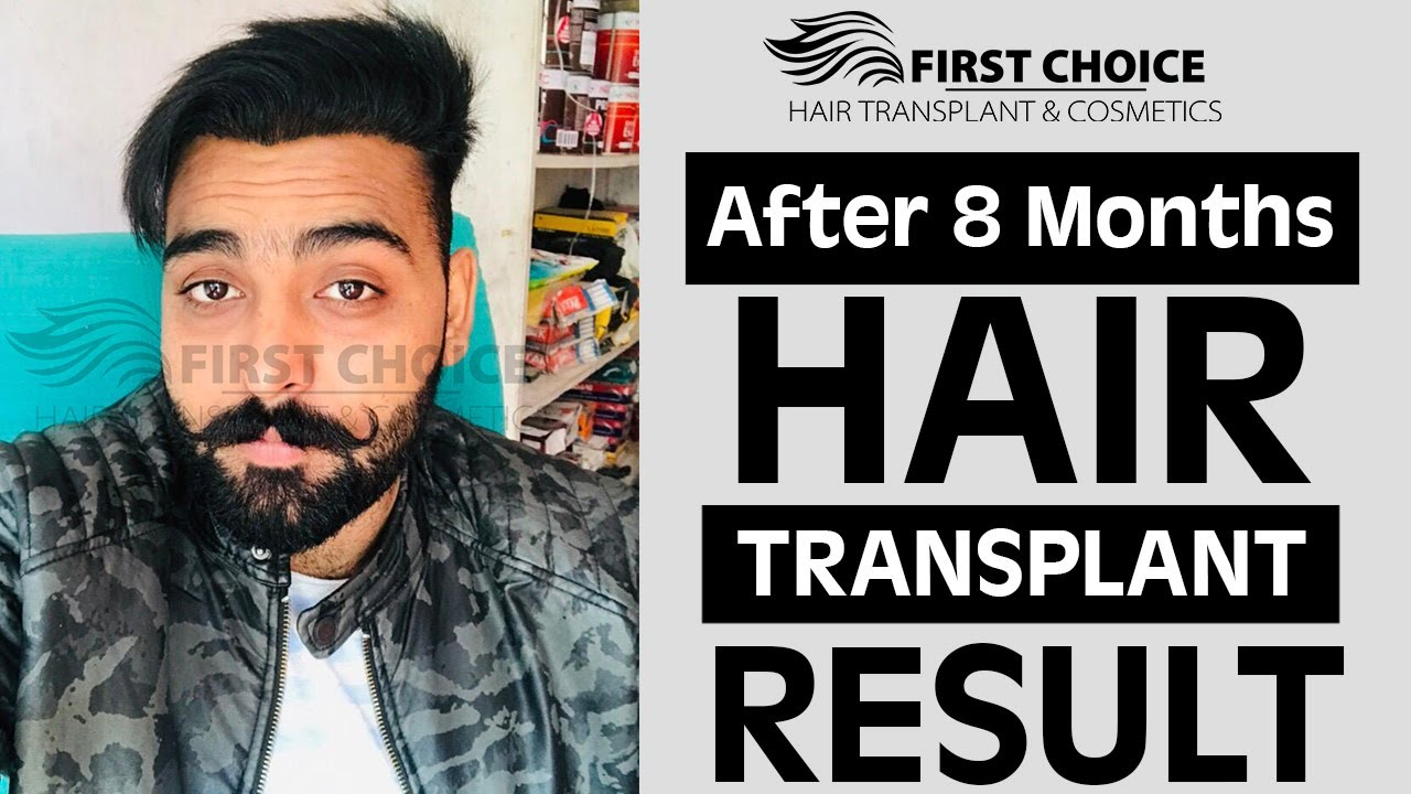 FUE Hair Transplant in Ludhiana | FCHTC Clinic - YouTube