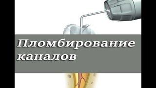 Пломбирование корневых каналов гуттаперчей. Латеральная конденсация. Эндодонтия. Стоматология.
