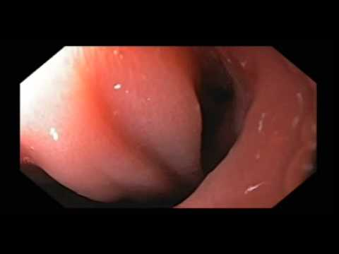 Anastomotic Ulcer Following Gastric Bypass Youtube